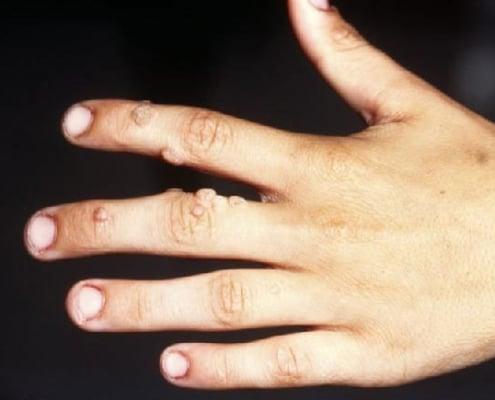 Warzen, Herpes, Gürtelrose